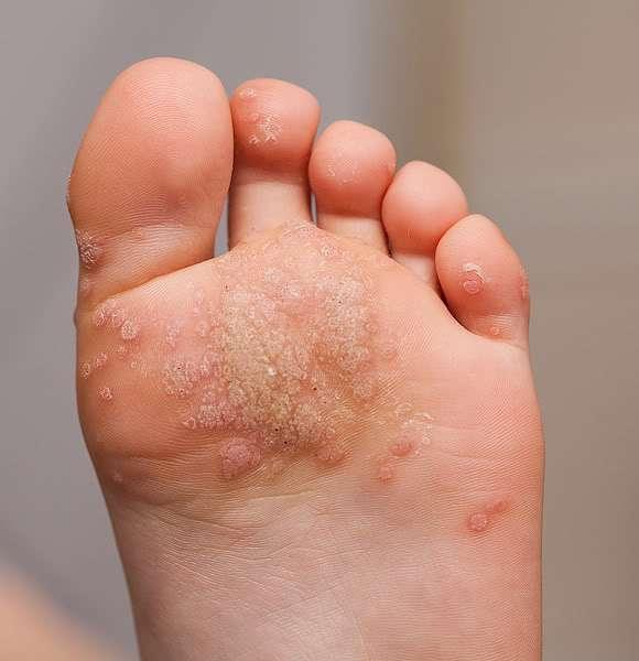 foot wart cluster