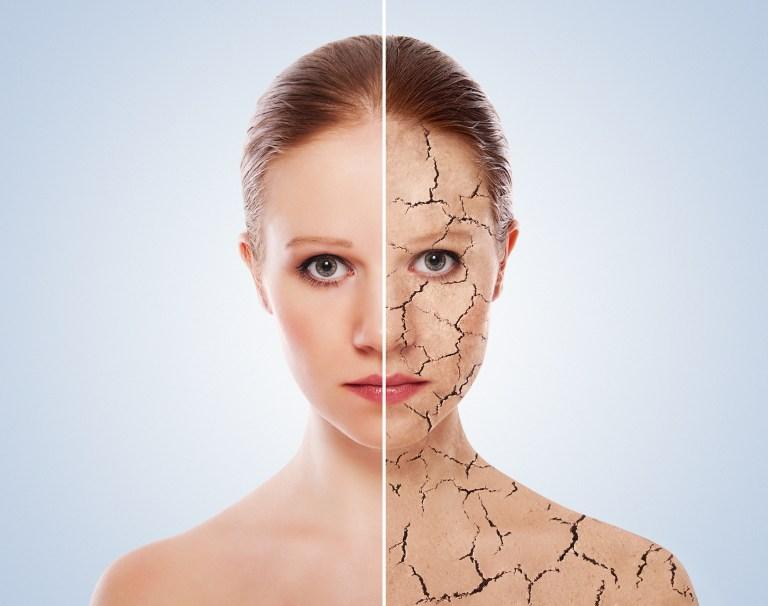 dehydrated skin cracks