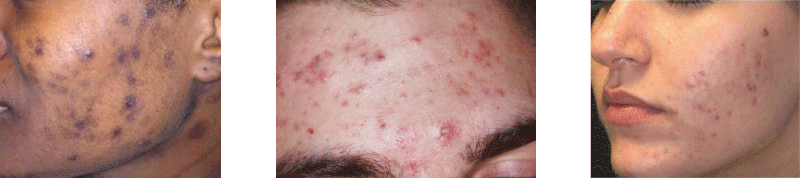 discolored acne scarring
