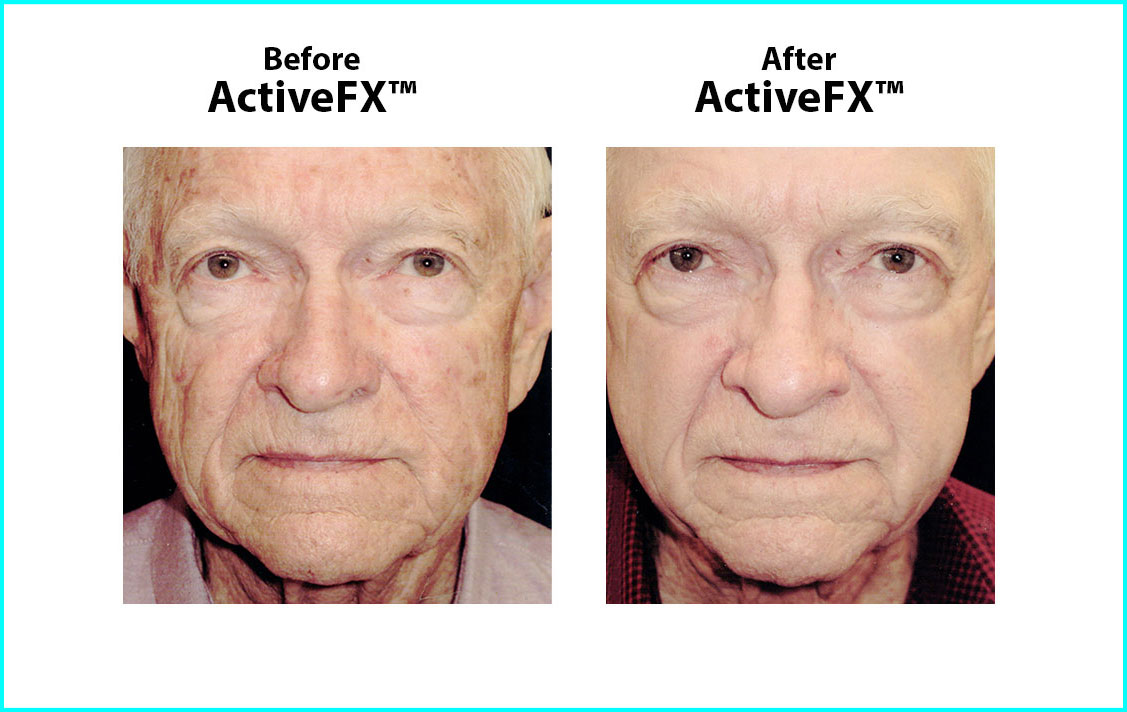 Before and After ActiveFX Treatement #1