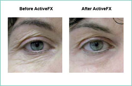 Before and After ActiveFX Treatement #2