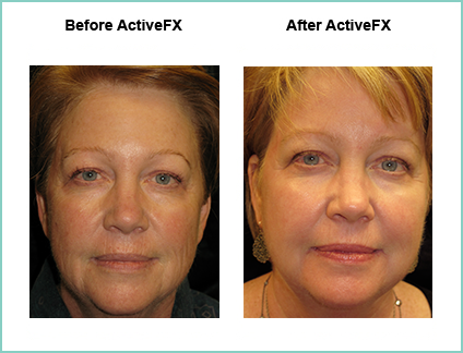 Before and After ActiveFX Treatement #5