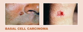 examples of Basal Cell Carcinoma
