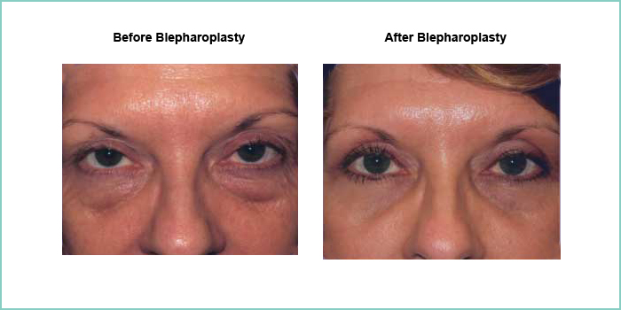 before and after blepharoplasty #5