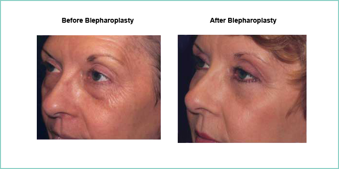 before and after blepharoplasty #6