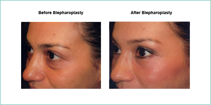 before and after blepharoplasty #3