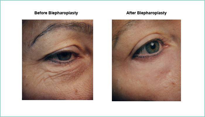 before and after blepharoplasty #1