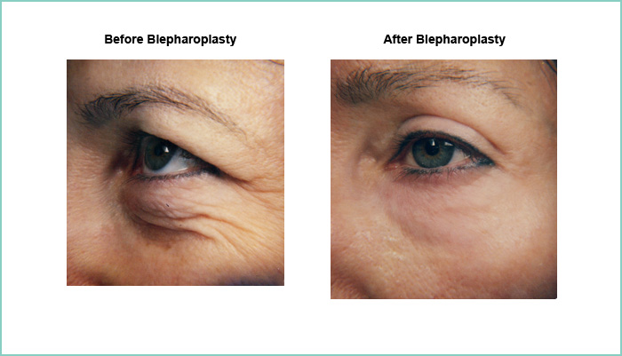 before and after blepharoplasty #2