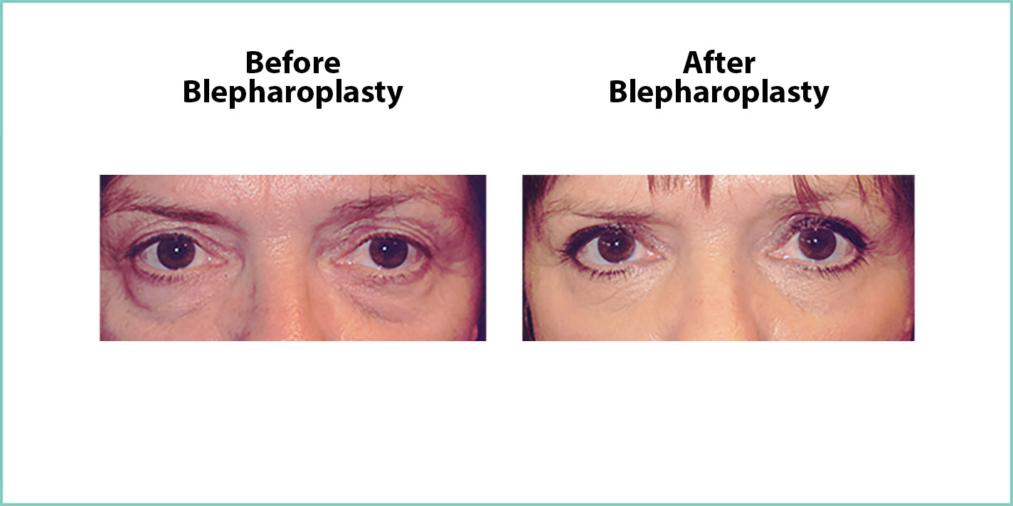 before and after blepharoplasty #7