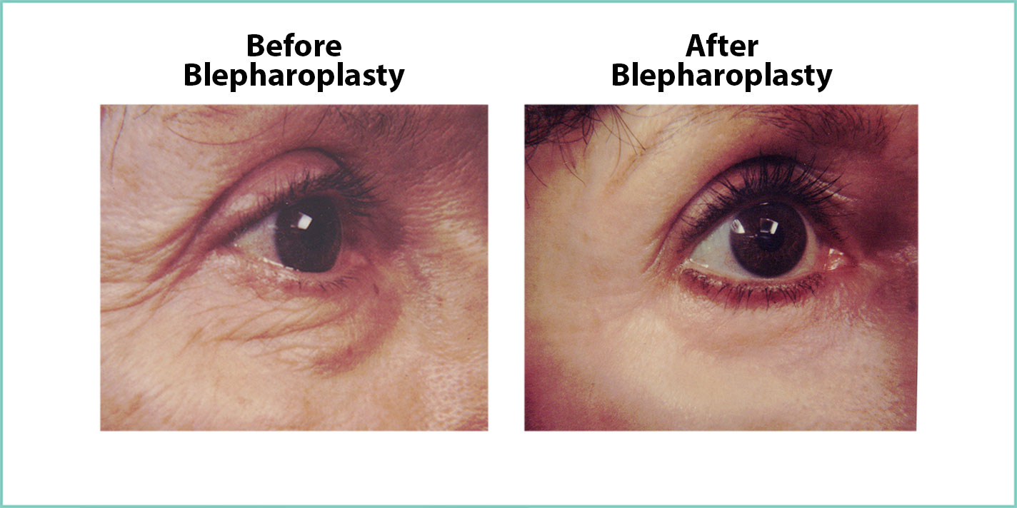 before and after blepharoplasty #8