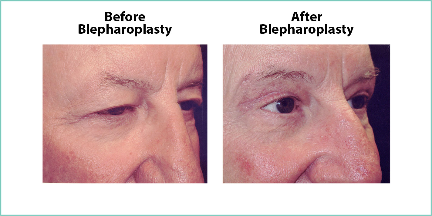 before and after blepharoplasty #9