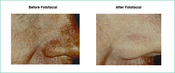 fotofacial before and after