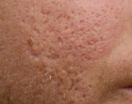 ice pick acne scarring