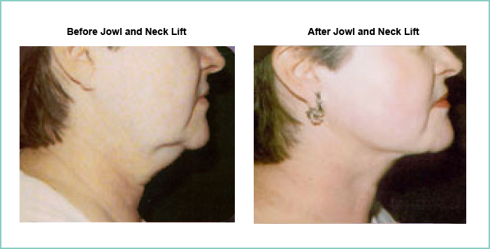 Jowl and Neck Lift Before and After #1