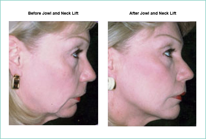 Jowl and Neck Lift Before and After #2