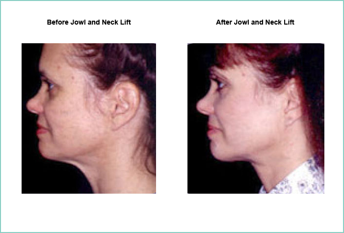 Jowl and Neck Lift Before and After #3