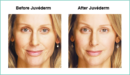 Juvederm Before and Asfter #2