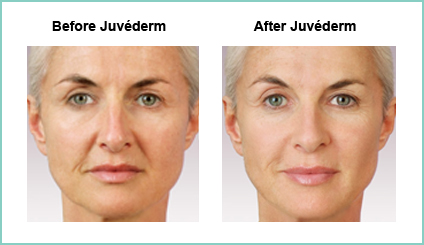 Juvederm Before and Asfter #3
