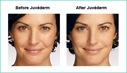 Juvederm Before and Asfter #4