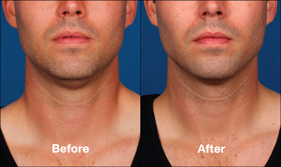 kybella before and after 1