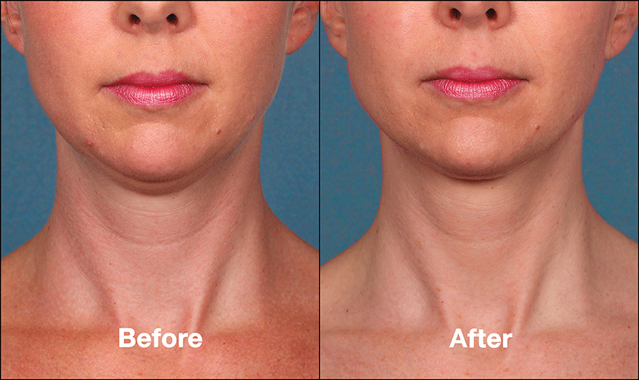 kybella before and after 8