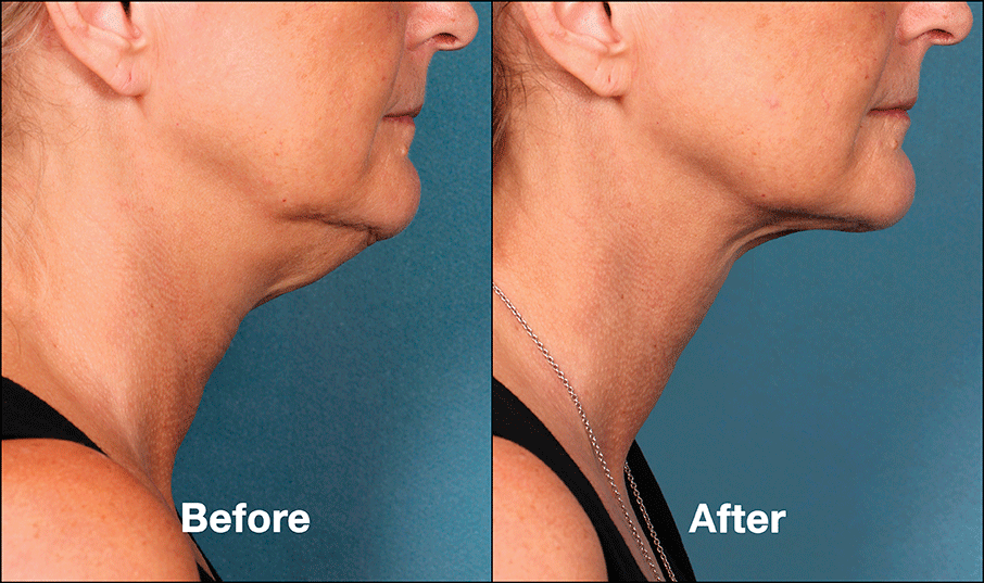 kybella before and after 3