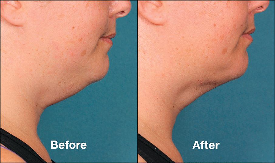 kybella before and after 4