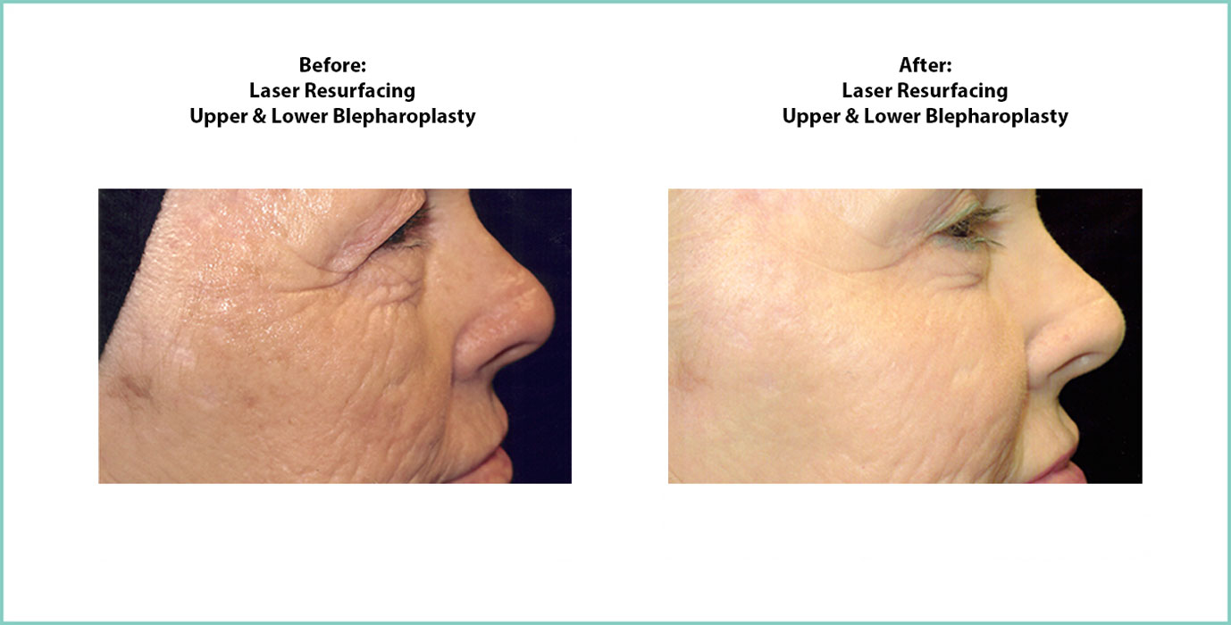 Laser Resurfacing Before and After Shot #2