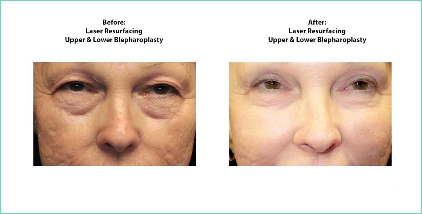 Laser Resurfacing Before and After Shot #3