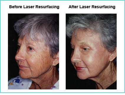 Laser Resurfacing Before and After Shot #4