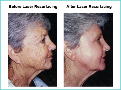 Laser Resurfacing Before and After Shot #5