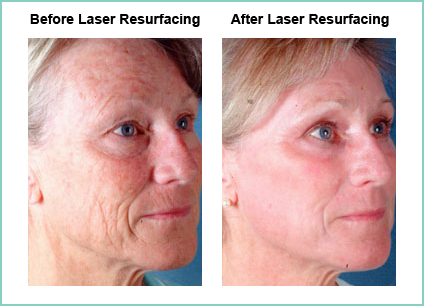 Laser Skin Resurfacing & Skin Rejuvenation in Austin, Texas