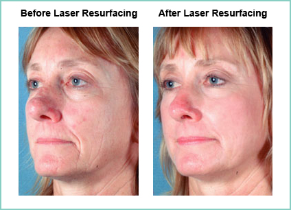 Laser Resurfacing Before and After Shot #7