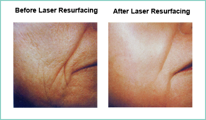 Laser Resurfacing Before and After Shot #8