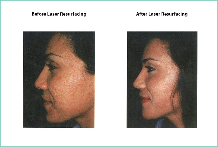 Laser Resurfacing Before and After Shot #9