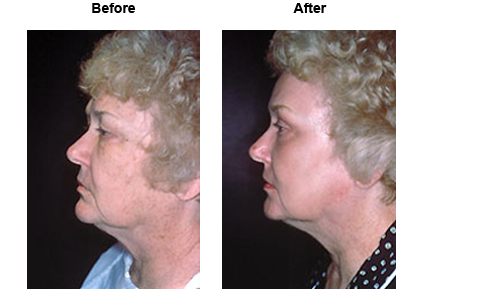 Female patient before and after laser resurfacing #1