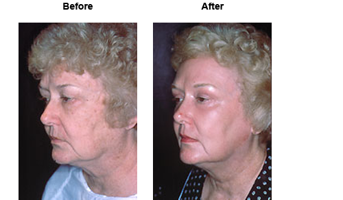 Female patient before and after laser resurfacing #2