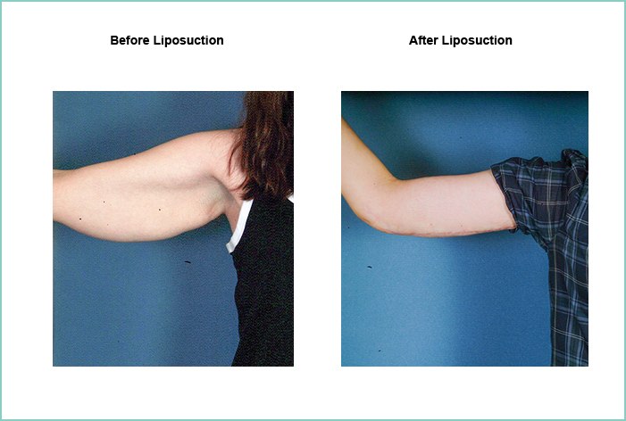 Liposuction Before and After #10