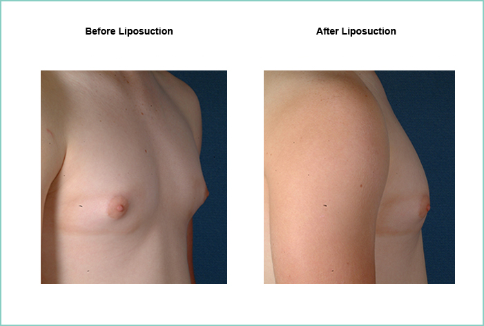 Liposuction Before and After #12
