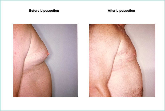 Liposuction Before and After #13