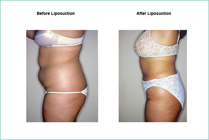 Liposuction Before and After #7