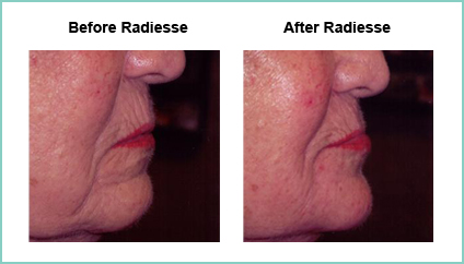 radiesse before and after 1