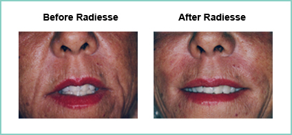 radiesse before and after 3
