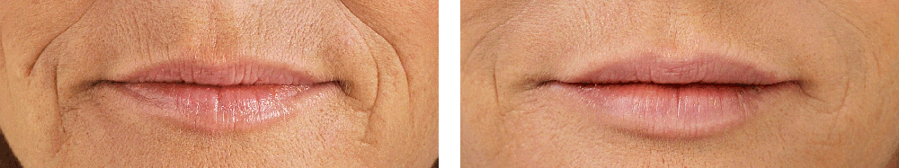 restylane before and after 1