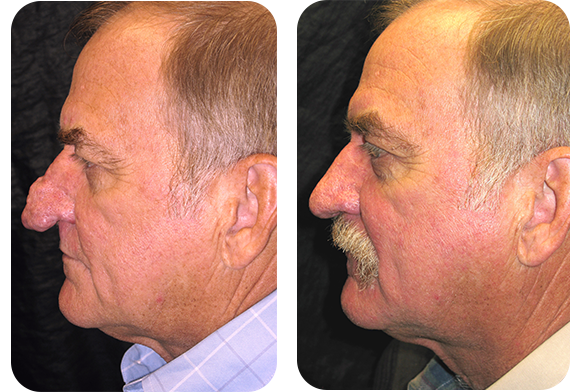 male before and after Rhinophyma procedure