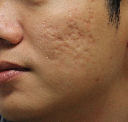 rolling scare acne scarring
