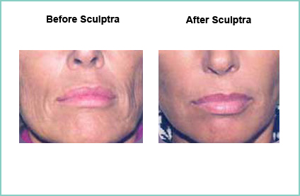 sculptra before and after 5