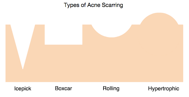 diagram of the different type of acne scarring