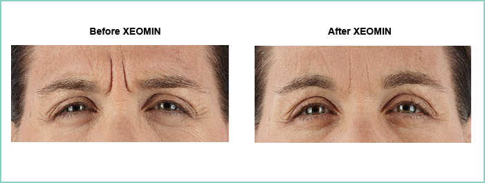 xeomin before and after 1
