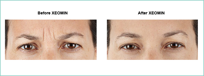 xeomin before and after 6
